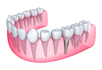 pdm_dental-implant-diagram